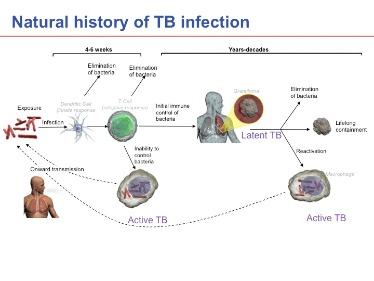 which of the following is not a characteristic of tuberculosis infection?